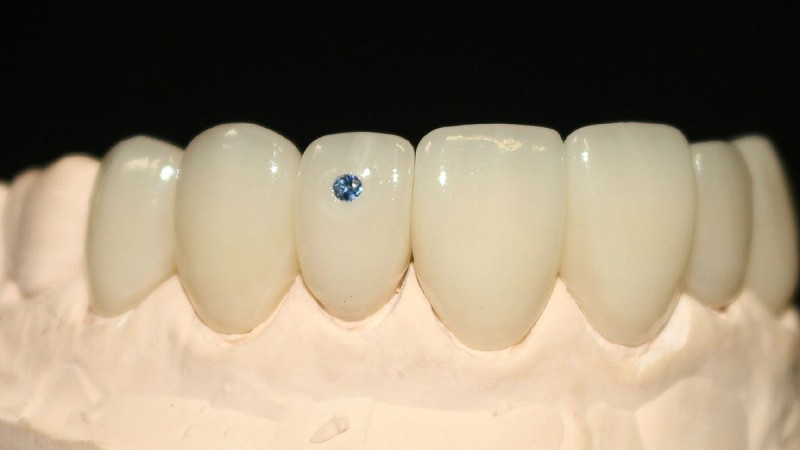 New Holistic, Innovative Approach  To Cosmetic Dentistry 4