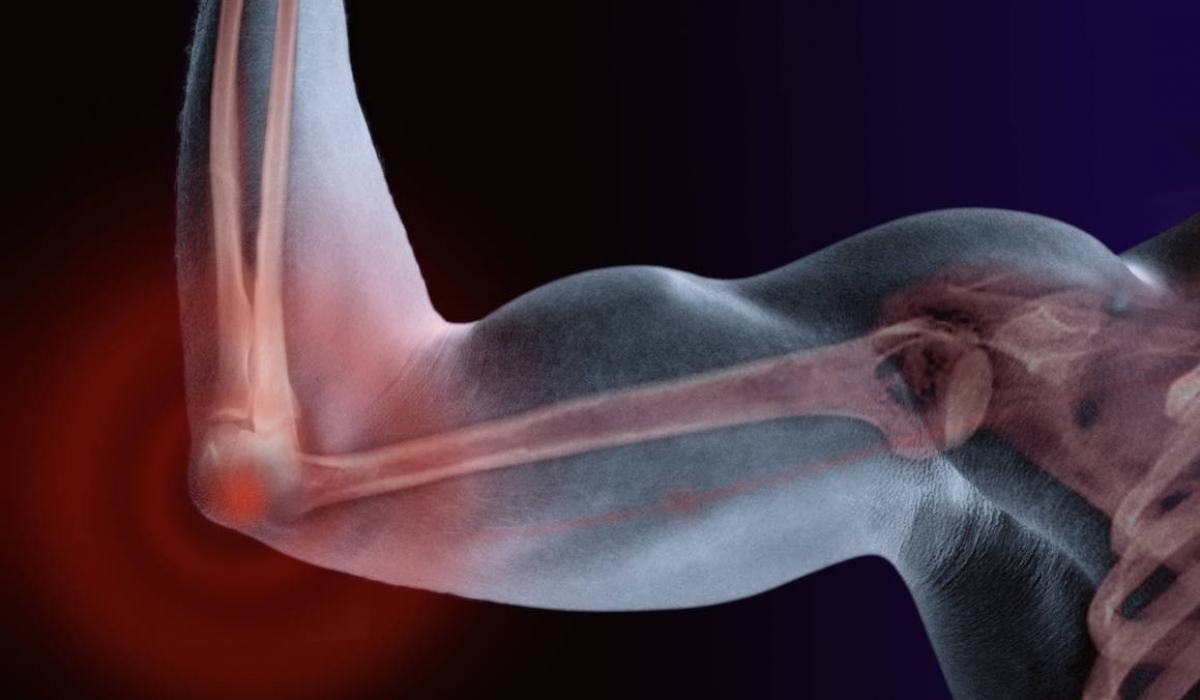 Can Your Own Stem Cells Cure Your Joint Pain?