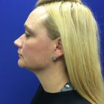 Understanding Ultherapy 1