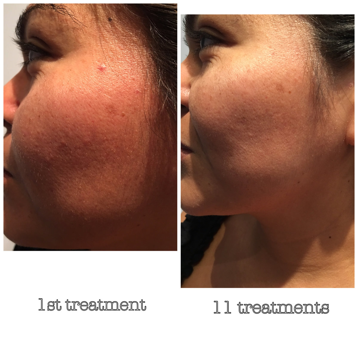 Westlake Body Contouring: Light Therapy for Fat Loss, Healing & So Much More 4
