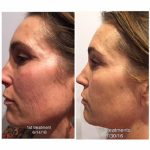 Westlake Body Contouring: Light Therapy for Fat Loss, Healing & So Much More 1