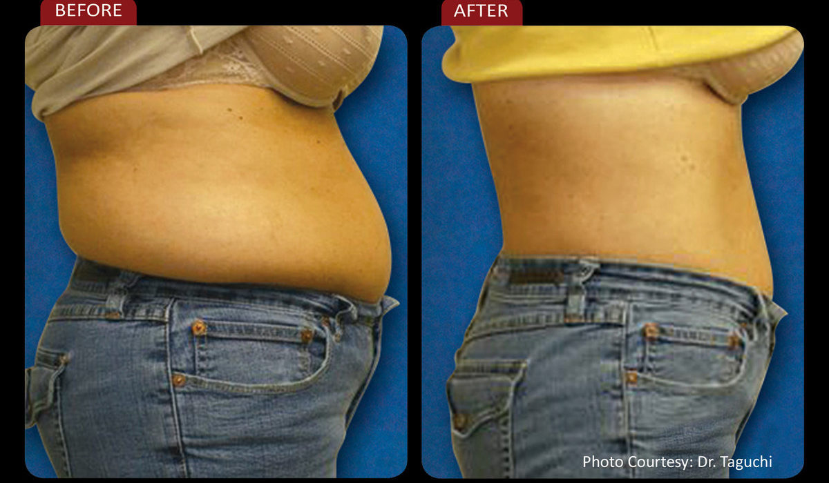 Contour & Lose Fat with ZERONA® Cold Laser Treatment at Wagner Holistic Center 2