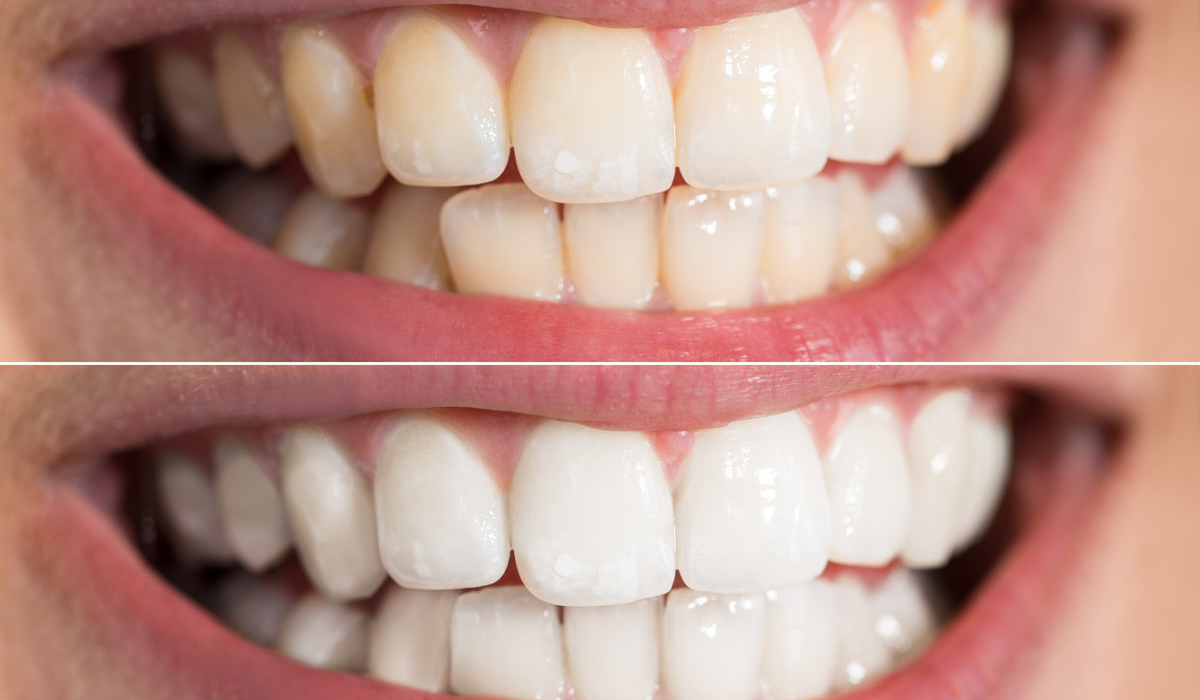 Why At-Home Teeth Whitening Doesn't Sparkle! 3